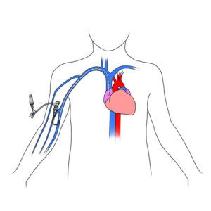 304.Central catheter with peripheral access on child.FINAL