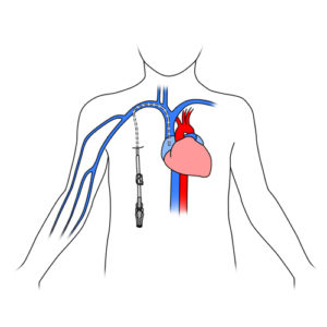 305. Central catheter inserted in child.FINAL