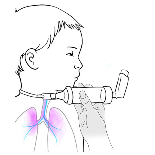 529.metered dose inhaler vapor in lungs-inhalateur doseur avec chambre espacement vaporise vers poumons.FINAL