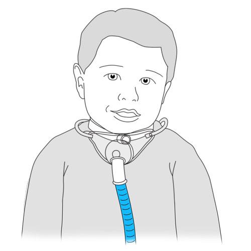 531.coffret tracheal